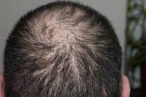 perdita-di-capelli_800x533